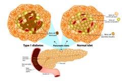 Tipo - 1 beta pilha do diabetes destruída ilustração stock
