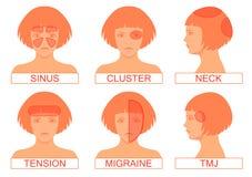Tipo de dolor del dolor de cabeza ilustración del vector