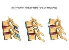 Tipo de la distracción de fractura de la espina dorsal libre illustration