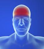Tipo dolor de cabeza: Tensión ilustración del vector