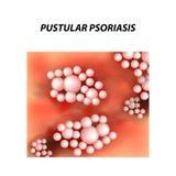 Tipo pustoloso struttura di psoriasi Eczema, dermatite della malattia della pelle Infographics Illustrazione di vettore sull'isol illustrazione vettoriale