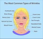 Tipos comunes de arrugas faciales Cirugía cosmética tratamiento facial de la mujer aislado Fotografía de archivo