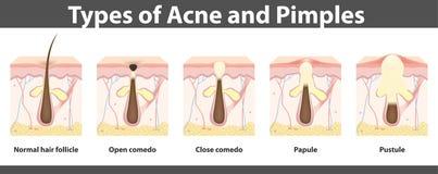 Tipos da acne, estrutura da espinha, ilustração do vetor Fotos de Stock Royalty Free