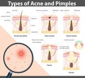 Tipos de acne e de espinhas, ilustração do vetor Imagem de Stock