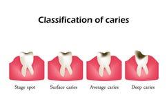 Tipos de cáries dentais Infographics Ilustração do vetor no fundo Fotos de Stock Royalty Free