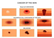 Tipos de câncer de pele ilustração do vetor