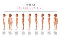 Tipos de curvatura traseira Desease médico infographic ilustração do vetor
