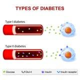 Tipos de diabetes stock de ilustración