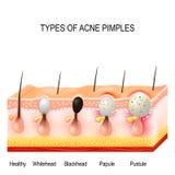 Tipos de espinillas del acné Fotos de archivo