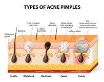 Tipos de espinillas del acné Imágenes de archivo libres de regalías