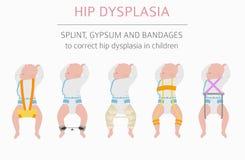 Tipos de la deformación del pie, desease médico infographic Dyspla de la cadera ilustración del vector