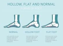 Tipos de la deformación del pie, desease médico infographic Hueco, la Florida stock de ilustración