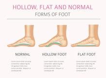 Tipos de la deformación del pie, desease médico infographic Hueco, la Florida libre illustration
