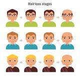 Tipos de queda de cabelo Fotografia de Stock Royalty Free
