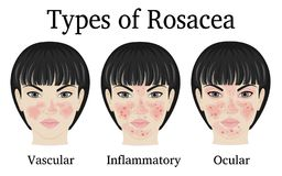 Tipos de Rosacea Fotografia de Stock