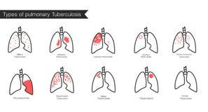 Tipos de tuberculose Vector a ilustração médica da silhueta dos pulmões do órgão do corpo humano com traqueia Cartaz para a clíni Imagens de Stock Royalty Free