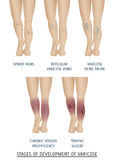 Tipos de varices en mujeres Etapas del desarrollo de varic Imagen de archivo