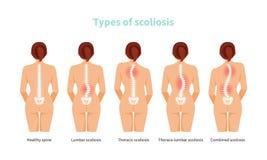 Tipos de vector de la escoliosis libre illustration
