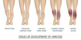 Tipos de veias varicosas nas mulheres ilustração royalty free