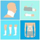 Tipos del collage de fracturas stock de ilustración