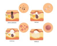 Tipos del vector de acné stock de ilustración