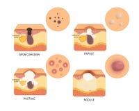 Tipos do vetor de acne ilustração stock