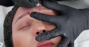 Tir haut étroit d'un visage femelle pendant la procédure du retrait de tatouage clips vidéos
