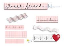 Tiras de la paginación llena EKG con título del ataque del corazón Imágenes de archivo libres de regalías