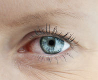 Tired human eye. Royalty Free Stock Photography