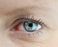 Tired human eye. Tired capillary human eye Royalty Free Stock Photography