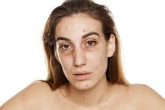 Drug addict woman royalty free stock photo