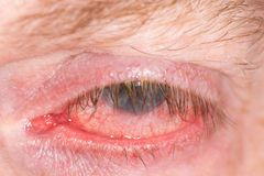 Tired red human eye. Close up of tired half closed human eye Royalty Free Stock Photography