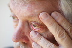 Tired senior man shows lower eyelid Royalty Free Stock Photography