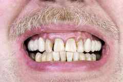 Tiro amarelo do estúdio dos dentes Fotos de Stock Royalty Free