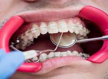 Tiro macro dos dentes com cintas e o retractor dental imagem de stock royalty free