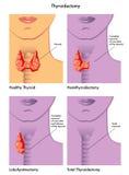 Tiroidectomía Imágenes de archivo libres de regalías