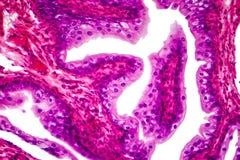 Tissu transitoire d'épithélium image stock