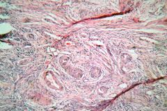 Tissue cells from a human cervix with cervical cancer cells Royalty Free Stock Image
