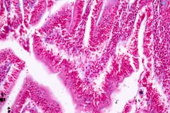 Tissue of small intestine or small bowel under the microscopic. Tissue of small intestine or small bowel under the microscopic in Lab stock photo