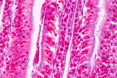 Tissue of small intestine or small bowel under the microscopic. Tissue of small intestine or small bowel under the microscopic in Lab royalty free stock photography
