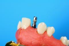 Titanium implant Royalty Free Stock Photos