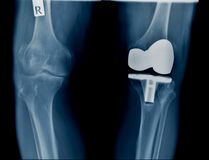 Hight quality x-ray with knee joint replacement. TKA x-ray image, hight quality x-ray with knee joint replacement royalty free stock images