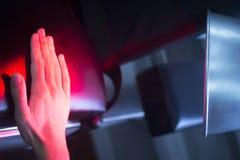 Tålmodig hand i röd sjukgymnastikvärme - behandling Royaltyfri Bild