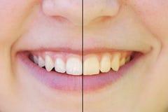Tänder som före och efter gör vit Royaltyfria Foton