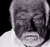 To Much Sun. Close up image of man with skin damage from the Sun Stock Photo