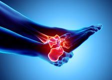 Tobillo doloroso - radiografía esquelética ilustración del vector