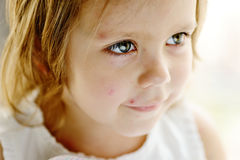Toddler girl with chicken pox Royalty Free Stock Images