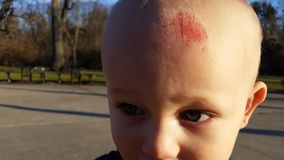 Toddler with Head Injury. Closeup of child with scrape or scratch injury on forehead royalty free stock images