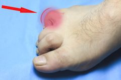 The toe is deformed. people are disabled. the finger is very sore.  stock photos