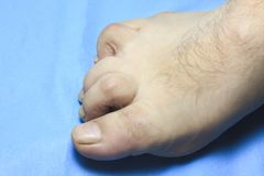 The toe is deformed. people are disabled. the finger is very sore.  stock photography